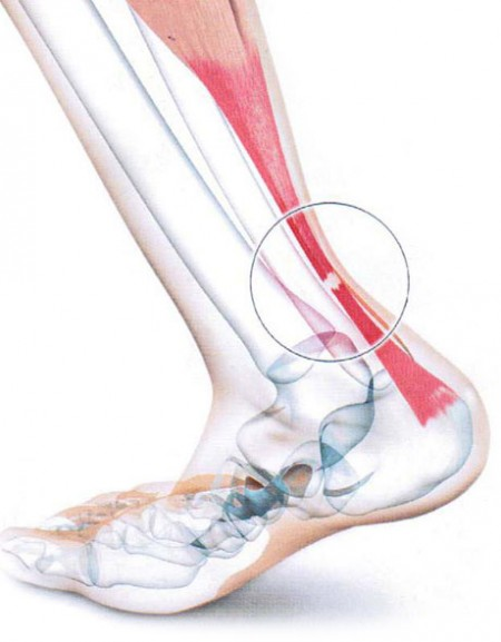 Tendon-Achille-anatomie